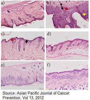 Estudio de los efectos medicinales de la guanabana o graviola contra el cáncer de piel inducido