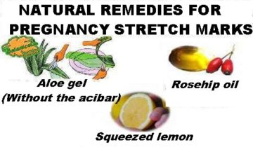 remedies stretch marks pregnancy creams recommended oils