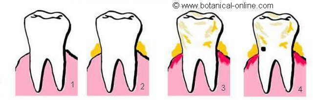 toothdecay development