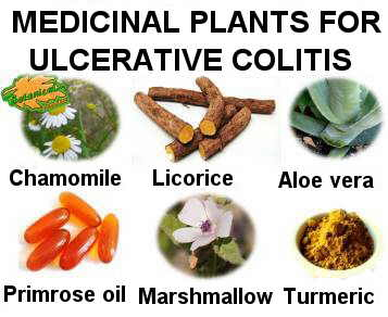 plants used in the natural treatment of ulcerative colitis