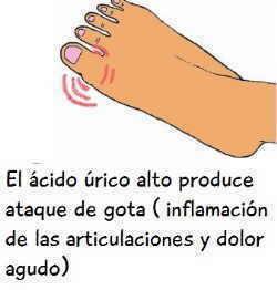 el acido urico alto o hiperuricemia produce ataque de gota o artritis gotosa en el dedo gordo del pie