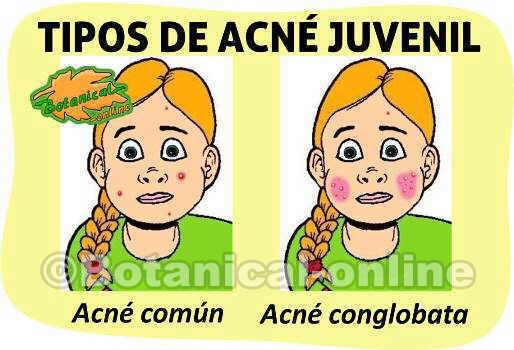 acne dibujo mapa zonas cuerpo