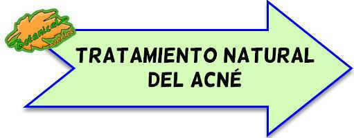 tratamiento natural acne