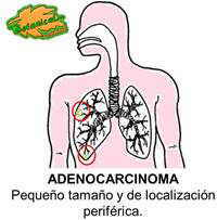Dibujo de adenocarcinoma