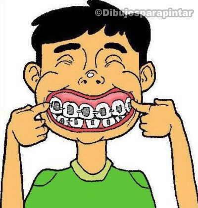 dibujo niño con brackets ortodoncia en los dientes