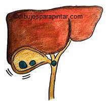 dibujo de ataque calculos biliares piedras vesicula