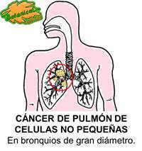 Dibujo de cáncer pulmonar celulas no pequeñas
