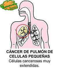 Dibujo de cáncer pulmonar celulas pequeñas