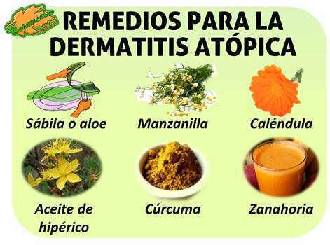 tratamiento con plantas medicinales y remedios naturales para la dermatitis atopica