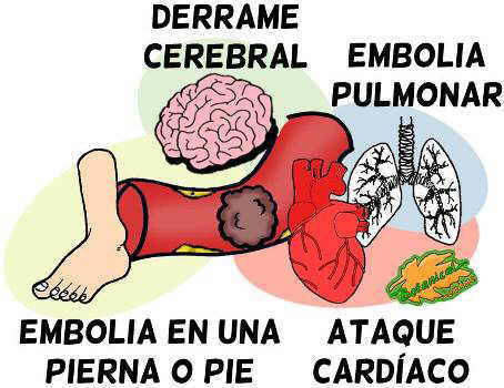 embolia tipos embolo derrame ataque tratamiento esquema dibujo
