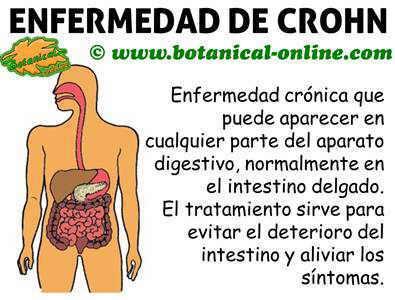 enfermedad de crohn, qué es
