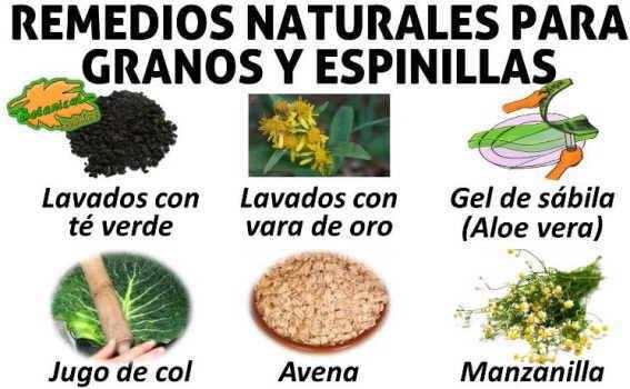 remedios naturales espinillas granos y acne