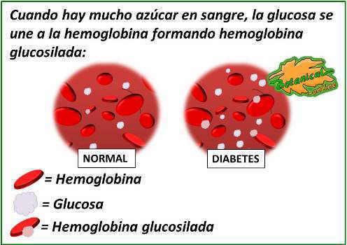 Dibujo ilustrativo de la formación de la hemoglobina glucosilada. Cuando hay mucho azúcar en sangre, la glucosa se une a la hemoglobina formando hemoglobina glucosilada hba1c en diabetes