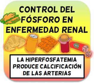 hiperfosfatemia en enfermedad renal, control del fosforo de la dieta