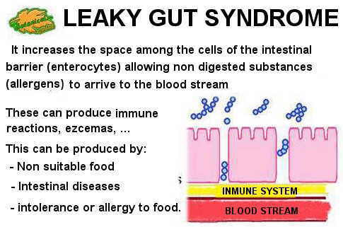 leaky gut diet foods