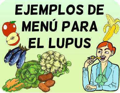 ejemplos menu lupus autoinmunes