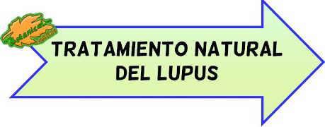 tratamiento natural lupus
