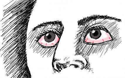 drawing of dry eyes