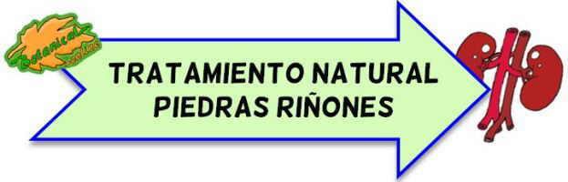 litiasis urinaria tratamiento natural