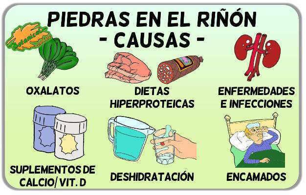 Dieta para evitar piedras en rinon