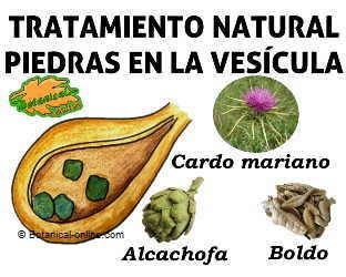 tratamiento natural piedras en la vesicula biliar, alcachofa, cardo mariano y boldo