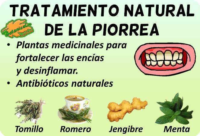 piorrea gingivitis remedios naturales tratamiento con plantas medicinales