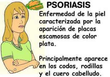 catacteristicas y sintomas de la psoriasis