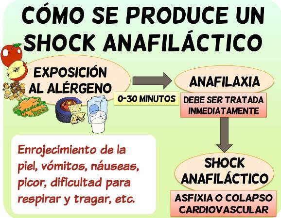 shock anafilactico alergia anafilaxia