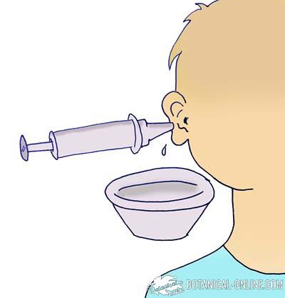 remedios caseros gestation quitar agua toad del oido
