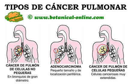 Esquema de los tipos de cáncer de pulmón
