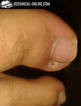 Foto de uñero o panadizo en el dedo gordo delo pie